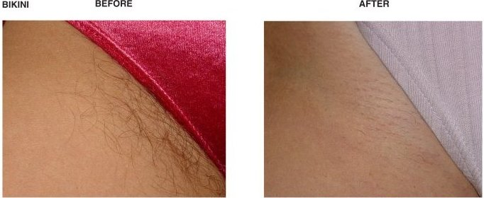 Brazilian Laser Hair Removal Before And After Photos 93