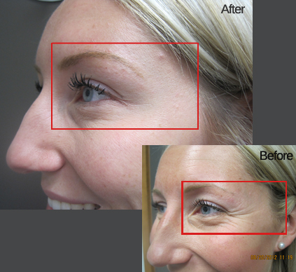 Before & After Botox Winnipeg Treatment
